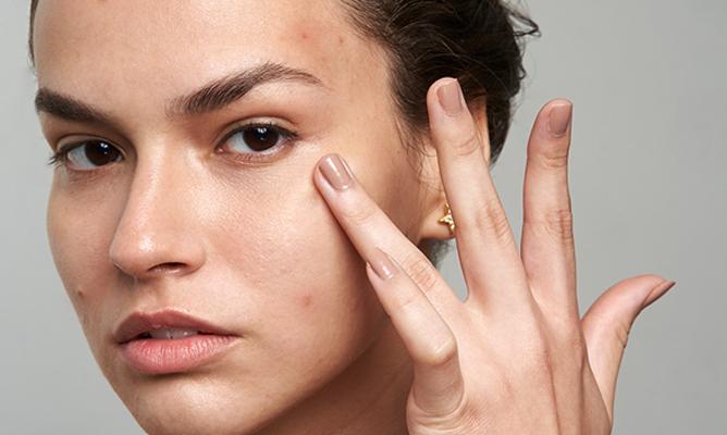 Maskné: acné y granitos en la cara por el uso de mascarillas